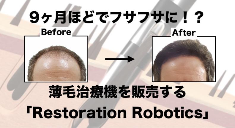 たった9ヶ月でフサフサになれる!?薄毛治療機を販売する「Restoration Robotics」